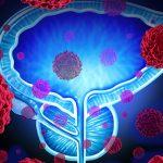 Rak prostate – može li se spriječiti?