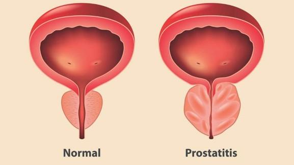 A prostatitis éhezésének kezelése Grapefruits prosztatitis